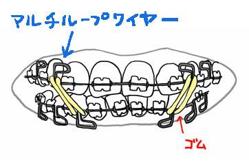 b-kyousei3.jpg